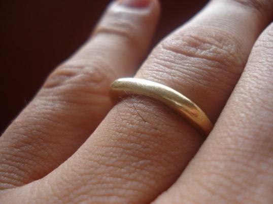 Слабо выраженное потемнение кожи под золотым кольцом (причина - примеси)